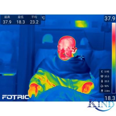 热像仪做体温筛查,对人体有害吗?